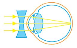 lensa cekung pada penderita miopi