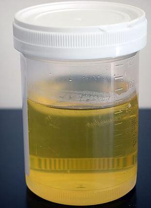 Faktor yang Mempengaruhi Produksi Urin