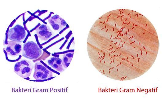 Pengelompokkan Bakteri Berdasarkan Metode Gram (Gram Stain)