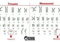 Kelainan Jumlah Kromosom pada Manusia
