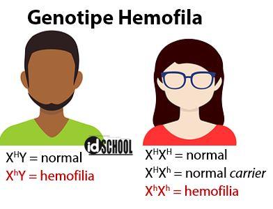 Contoh Penyakit Menurun yang Terpaut Gonosom adalah Hemofilia